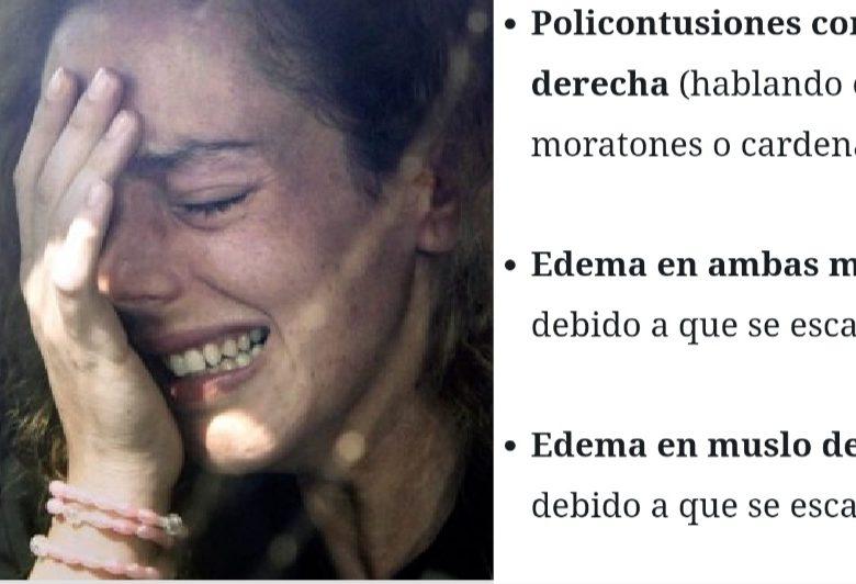 Resumen de las lesiones que sufrió Rocío Carrasco tras la paliza de Rocío flores